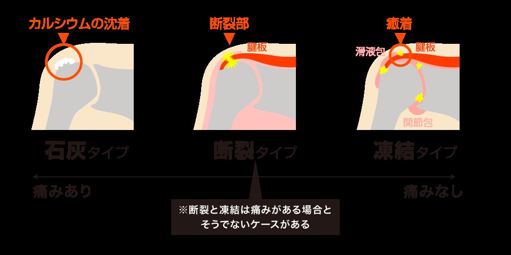 石灰タイプ・断裂タイプ・凍結タイプ