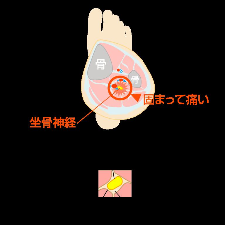 坐骨神経図解