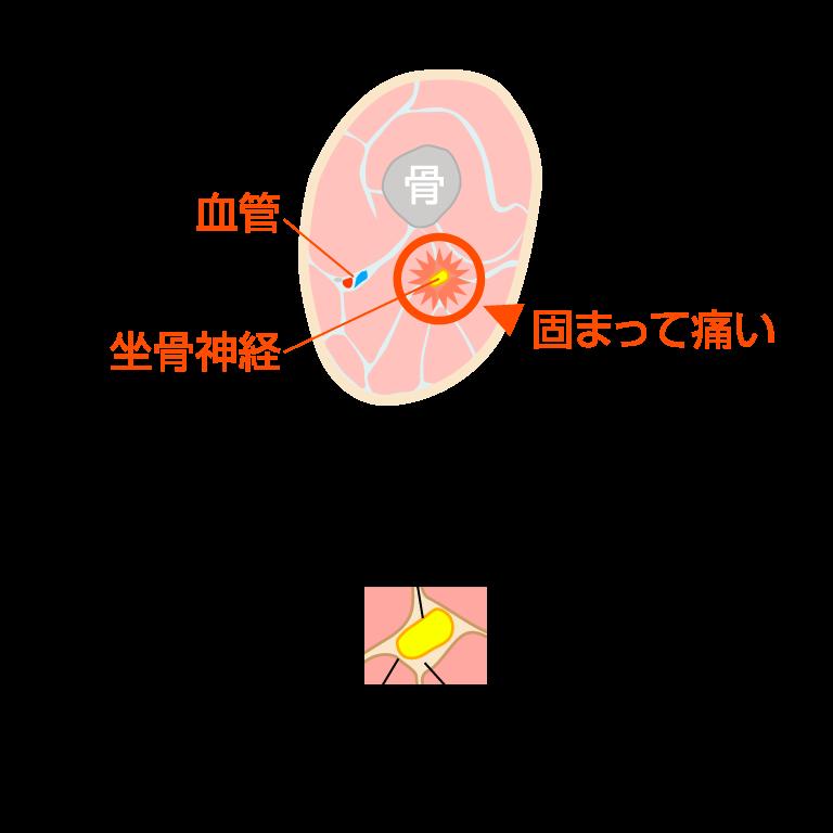 坐骨神経の痛み図解