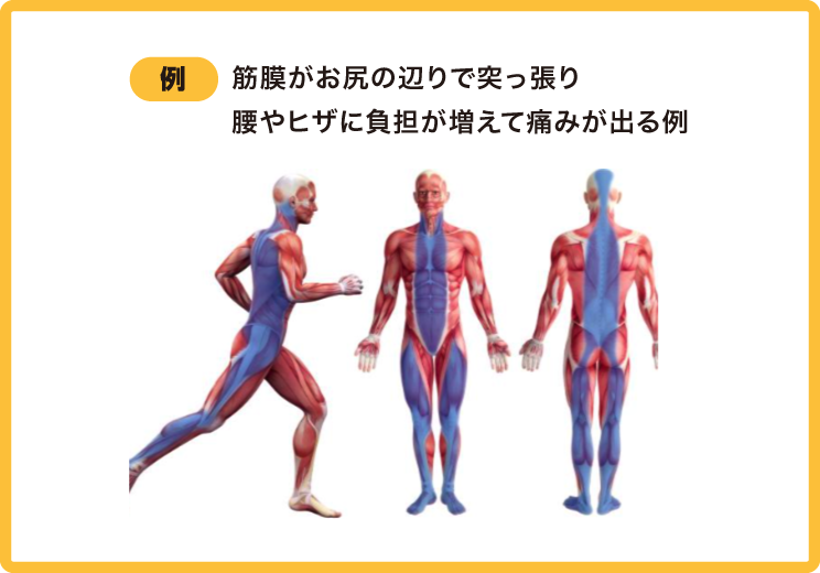例)筋膜がお尻の辺りで突っ張り腰やヒザに負担が増えて痛みが出る例