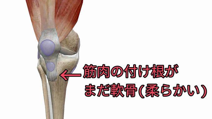 大腿四頭筋の付け根がまだ軟骨で変形する