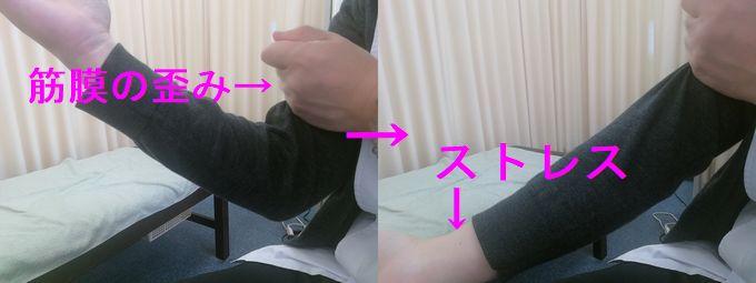 足底筋膜の歪み